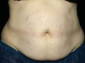 woman's stomach before coolsculpting in nj