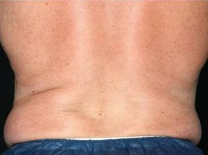 Man's back after cheap coolsculpting