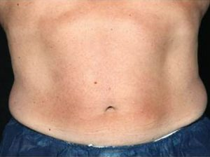Man's stomach after cool sculpting nj