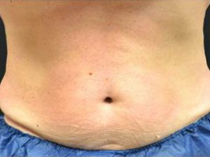 Man's stomach before cool sculpting nj