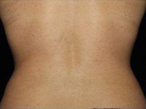 woman's back after coolsculpting south nj