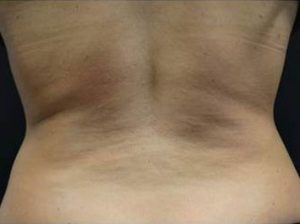 woman's back before coolsculpting south nj
