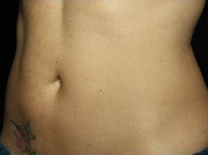 woman's stomach after coolsculpting weight loss