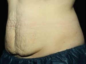man's stomach after coolsculpting treatment nj