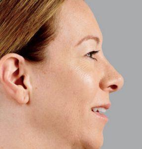 woman's close up profile after juvederm nj