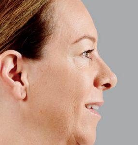woman's close up profile before juvederm nj