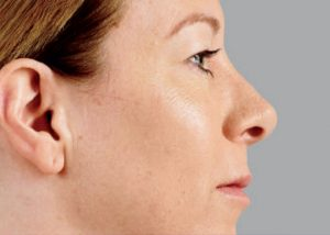 woman's profile after juvederm nj