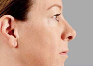 woman's profile before juvederm nj