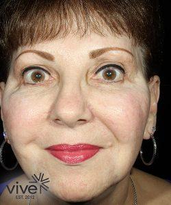 elderly woman after picosure facial rejuvenation