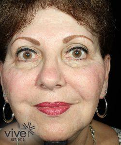 elderly woman before picosure facial rejuvenation