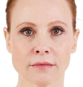 womans face after juvaderm treatment
