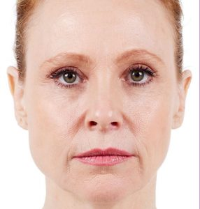 womans face before juvaderm treatment