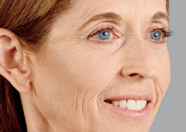 julia-closeup-after