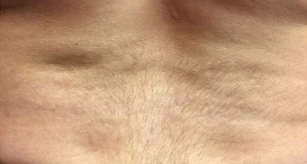 picosure-erohaly-after