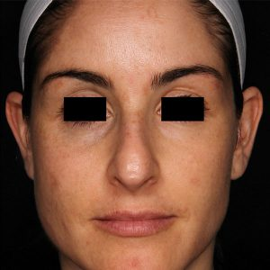 woman's face after picosure facial rejuvenation south jersey