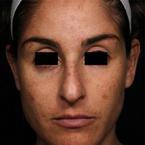 woman's face before picosure facial rejuvenation south jersey