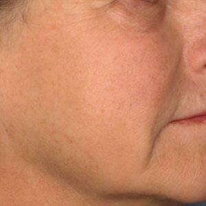 woman's cheek after picosure skin rejuvenation