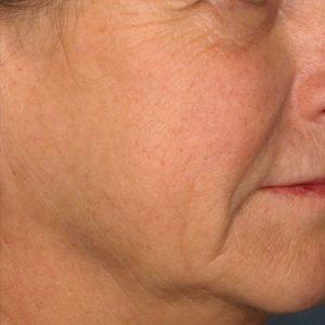 woman's cheek before picosure skin rejuvenation