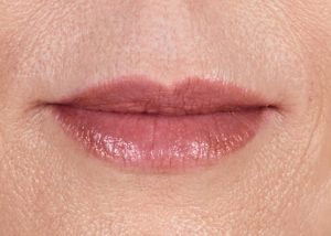 woman's lips close up after juvaderm nj