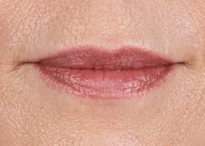woman's lips close up before juvaderm nj