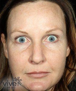 woman's face after picosure facial rejuvenation south nj
