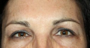 woman's eyes after botox spa
