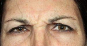woman's eyes before botox spa