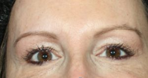 woman's eyes after botox in south jersey