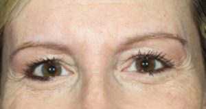 woman's eyes before botox in south jersey