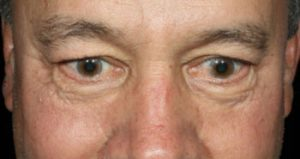 man's eyes after medical botox