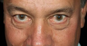 man's eyes before medical botox