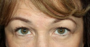 Woman's eyes after medical spa treatments