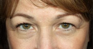 Woman's eyes before medical spa treatments