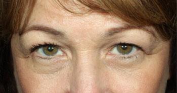 eyes-4-before