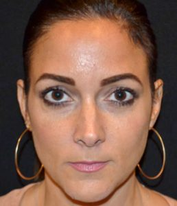 Woman's face before botox south jersey