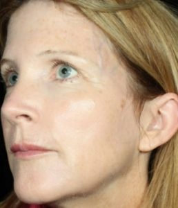 woman's profile after botox in south jersey