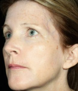 woman's profile before botox in south jersey