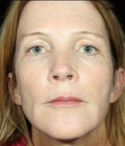 woman's face after botox south jersey