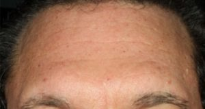 Forehead after juvederm nj