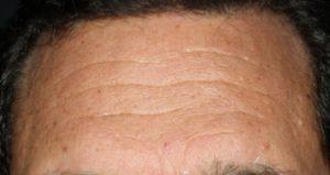Forehead before juvederm nj
