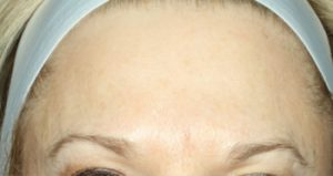 forehead after medical spa treatments