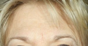 forehead before medical spa treatments