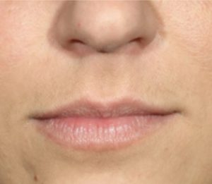 lip botox before and after