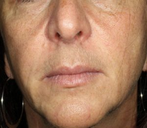 woman' after lip injections nj