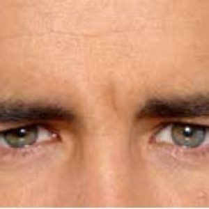 Man's brow line after botox in south jersey