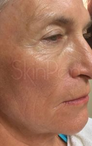 older woman's face after microneedling treatment