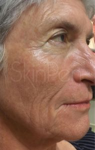 older woman's face before microneedling treatment