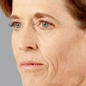 Woman's facial profile after vlift