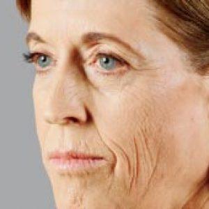 Woman's facial profile before vlift
