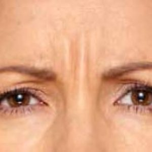 Woman's brow before cosmetic botox